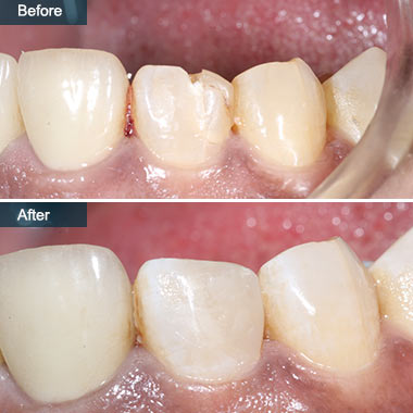 before after Cavity Filling Composite Fillings Brooklyn NY