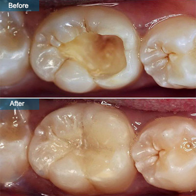 before after Cavity Filling Composite Fillings