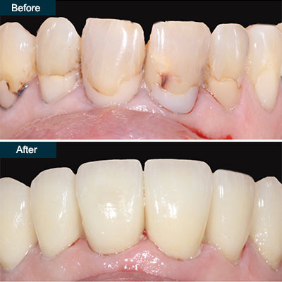 before after Dental Veneers Brooklyn NY