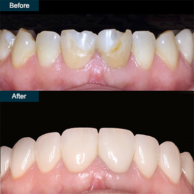 before after Dental Veneers (press on veneers)