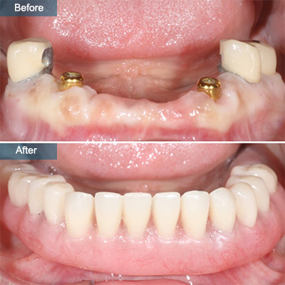 before after Denture Implants (Dental Implant Dentures)