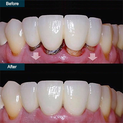 Before and After Soft Tissue Gum Graft
