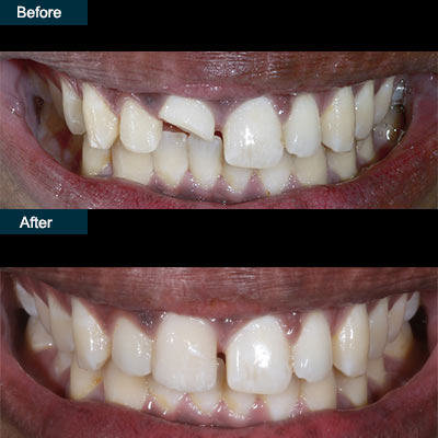 before after dental anterior crowns brooklyn