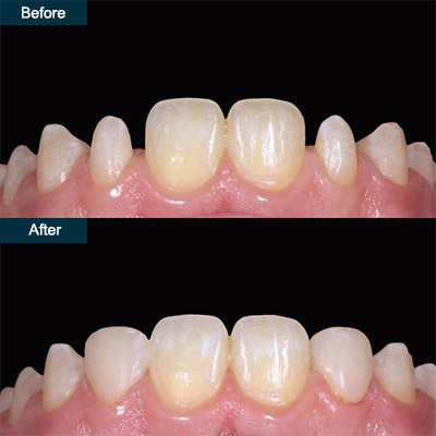 before after dental bonding 2