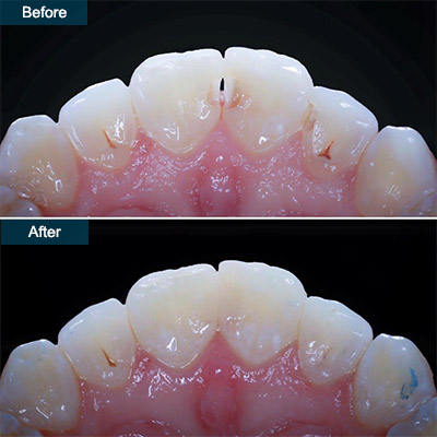 before after dental bonding