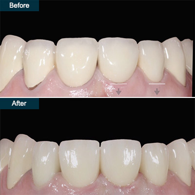 before after dental crowns