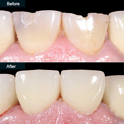before after dental crowns brooklyn ny