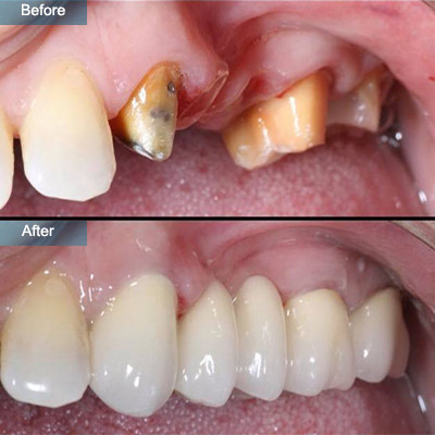 before after dental implants