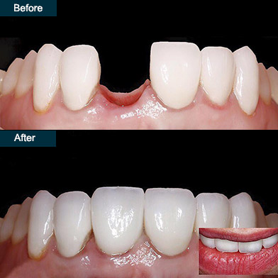 single tooth implant dentist brooklyn ny