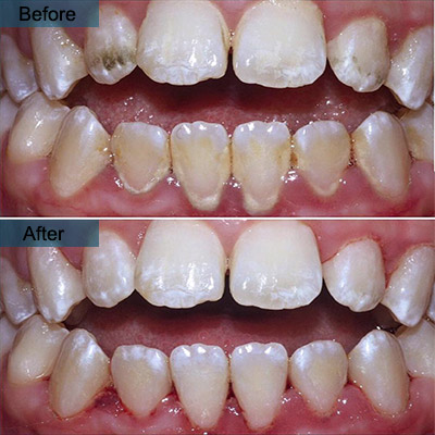 before after deep teeth cleaning