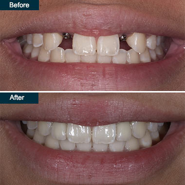 Before After Dental Implant Crowns