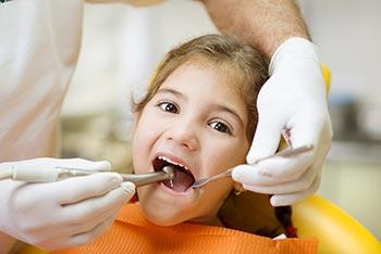 Cavities Caries pediatric dentist Brooklyn NY