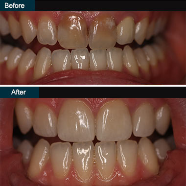 Dental Veneers Brooklyn NYC | before after 1