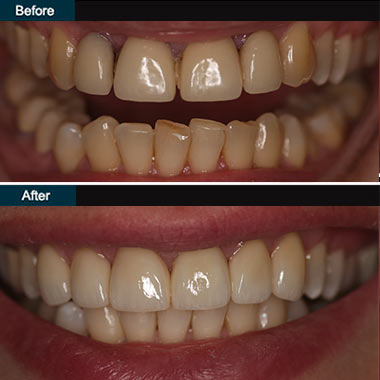 Dental Veneers Brooklyn NYC | before after 2