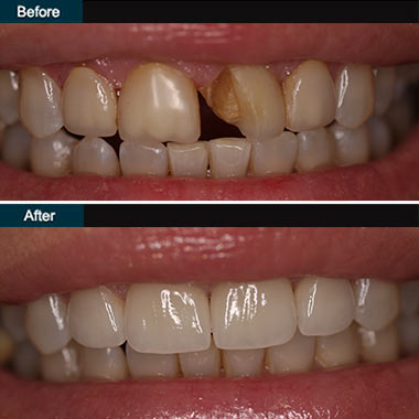 Dental Veneers Brooklyn NYC | before after 3