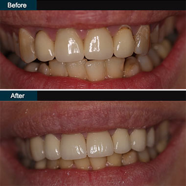 Dental Veneers Brooklyn NYC | before after 4