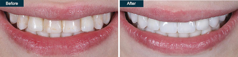Composite Veneers Before and After Brooklyn Cosmetic Dentist