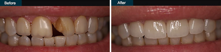 Porcelain Veneers Before and After Brooklyn Cosmetic Dentist