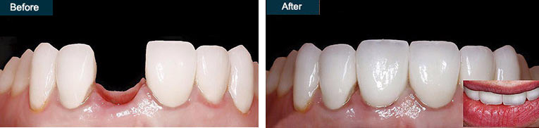 dental emergency bridge implant tooth repair brooklyn NY