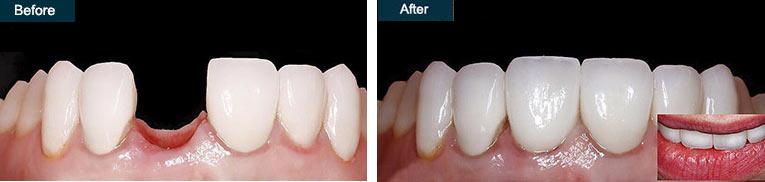dental emergency bridge implant tooth repair brooklyn NY