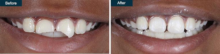 dental emergency broken tooth repair brooklyn ny