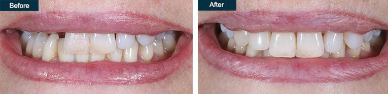dental emergency crown repair brooklyn ny