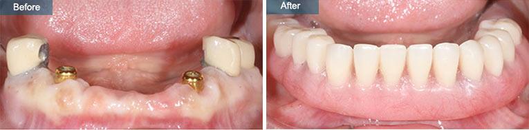 Dental Emergency Denture Repair Brooklyn NY