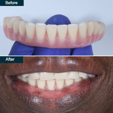denture implants Brooklyn