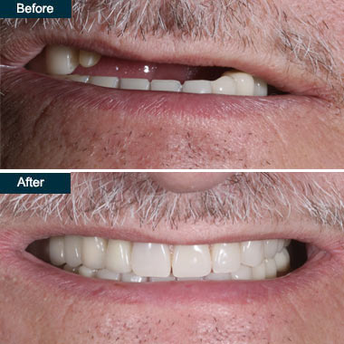 dentures implant Brooklyn