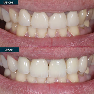 before after Denture Brooklyn NYC