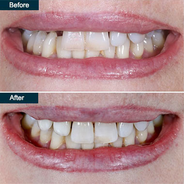 Before After Implant Crowns Brooklyn