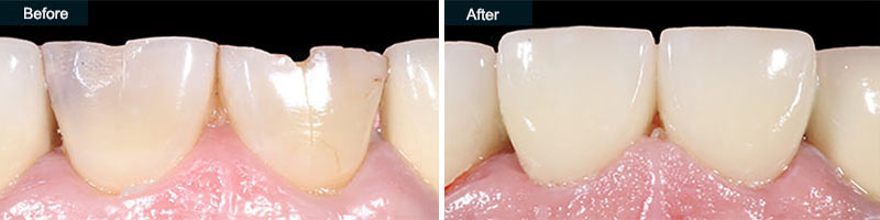 Dental Crowns Before & After | Cosmetic Dentistry in Brooklyn
