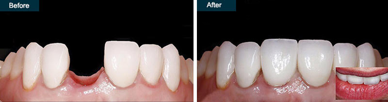 Single Tooth Implants Before & After