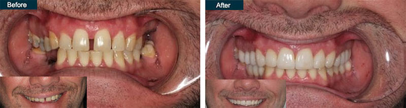 Full Mouth Dental Implants in Brooklyn