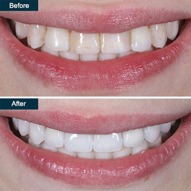 Zoom Teeth Whitening In Brooklyn Ny Cosmetic Laser Whitening