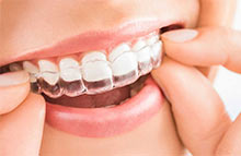 orthodontics Brooklyn
