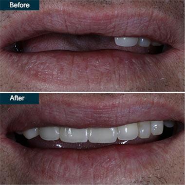 Dental Implant Crowns Brooklyn NY