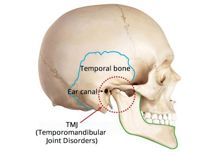 Tmj Treatment Brooklyn Ny Top Rated Tmj Dentist