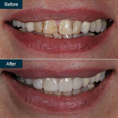 Porcelain Dental Veneers | Press On Veneers, Brooklyn NYC